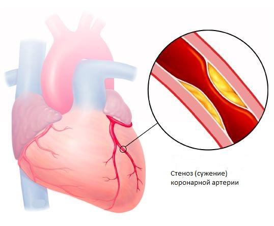 коронарных артерий